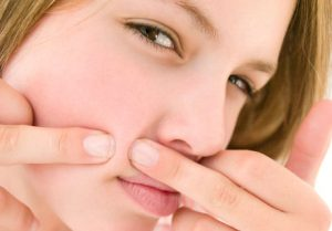 Como curar a acne de uma forma natural