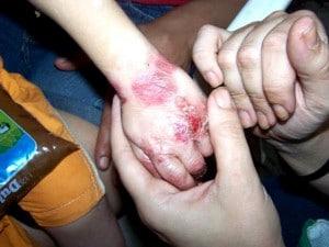 Conheça a rara doença Epidermólise bolhosa