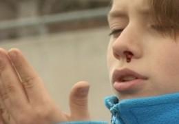 O que fazer no caso de uma hemorragia nasal