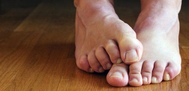 A onicomicose e dois tratamentos caseiros para eliminá-la