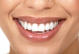 Dicas caseiras para branquear os dentes