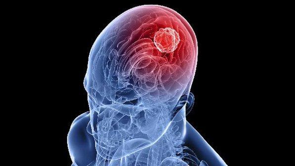 Alguns sintomas de um Tumor Cerebral