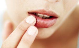 Como fazer um protetor labial em casa