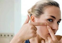 10 dicas para remover cravos