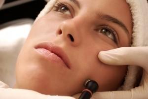 Radiofrequência facial para reafirmar sua pele