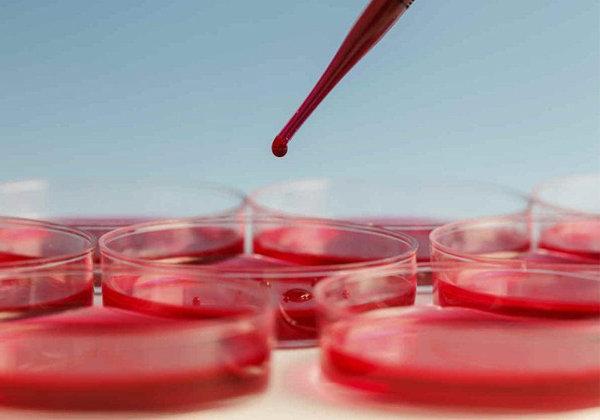 dicas de como aumentar a hemoglobina