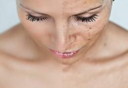 Eliminar as manchas na pele