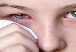 Homeopatia para o tratamento de conjuntivite alérgica