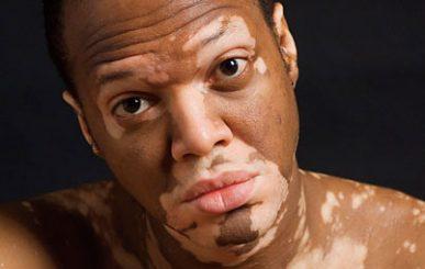 Remédios naturais para Vitiligo