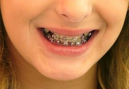 Conselhos odontológicos para quem usa aparelho