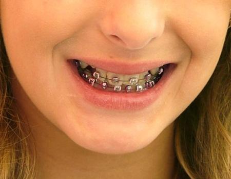 Conselhos odontológico para quem usa aparelho