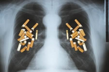 Dia Mundial Contra A Doen 231 A Pulmonar Obstrutiva Cr 244 Nica