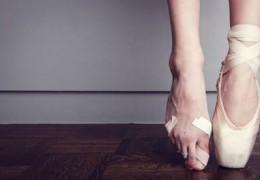 Como eliminar os joanetes dos pés sem cirurgia