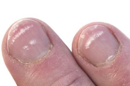 O que são as manchas brancas sobre as unhas?