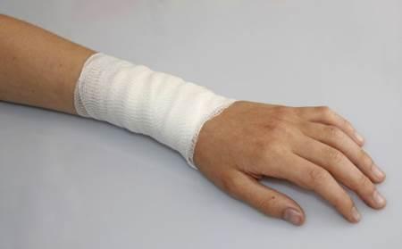 Remédios caseiros para combater queimaduras leves