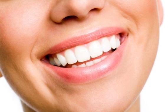 Como branquear os dentes de forma caseira-1