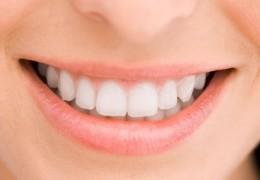 Como branquear os dentes de forma caseira