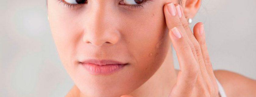Obstrução de glândulas sebaceous em uma cara de uma foto