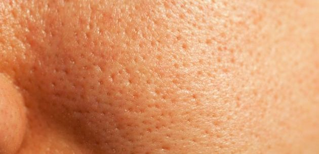Remédios caseiros para tratar poros dilatados