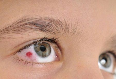 Pontos a considerar sobre os derrames oculares