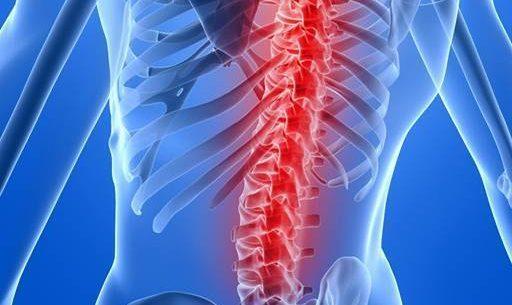 Dicas essenciais para cuidar da saúde da coluna e evitar dores