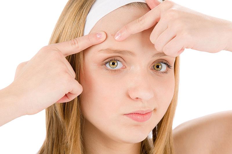 Resultado de imagem para dicas para prevenir a acne