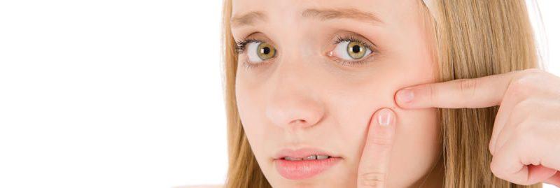 Dicas para evitar que sua pele se torne propensa à acne