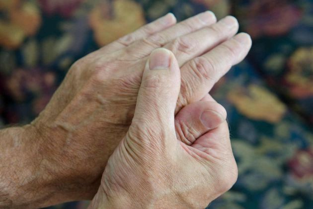 Dicas para aliviar a artrite com remédios naturais
