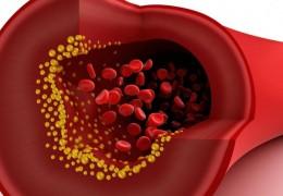 6 mitos sobre o colesterol que nunca devemos acreditar