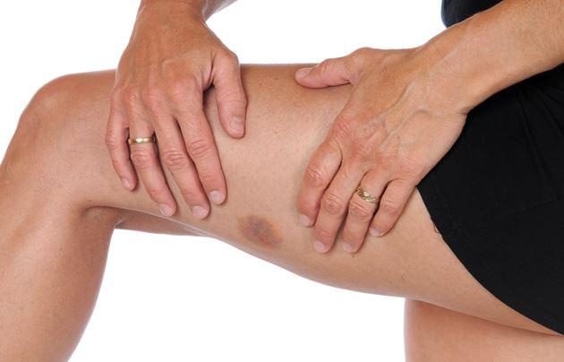 6 remédios caseiros eficazes para tratar hematomas