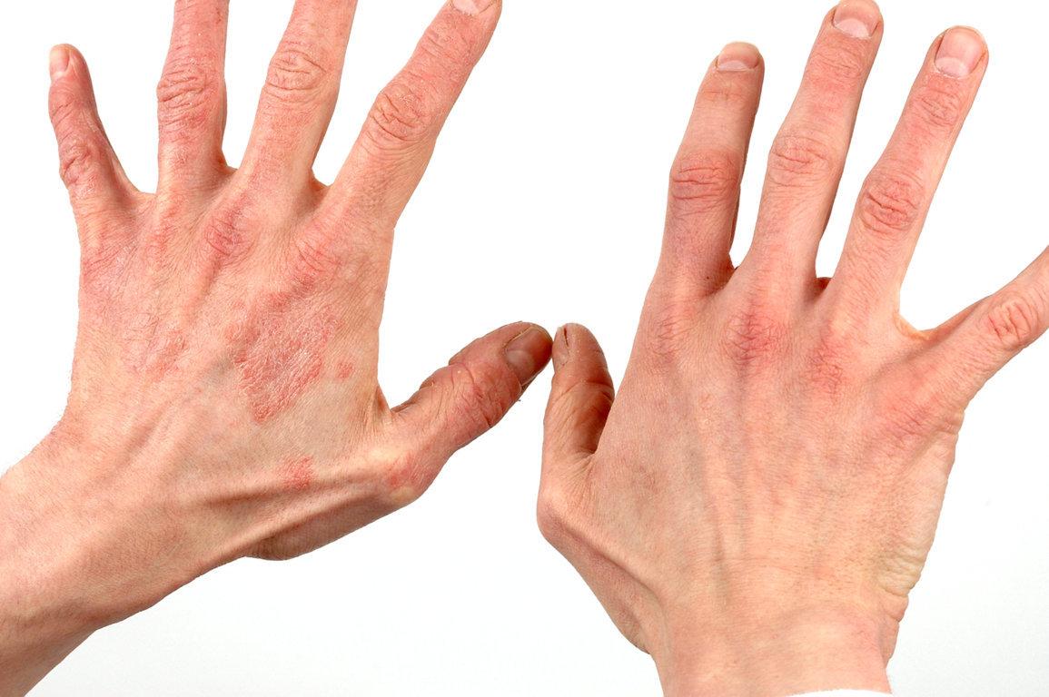 Ranku pirstu odos grybelis