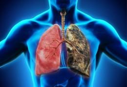 10 remédios caseiros para tratar a bronquite