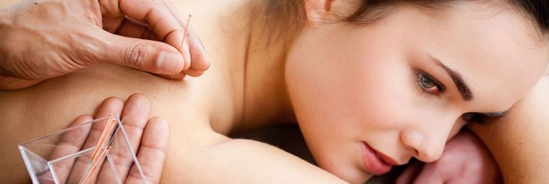Os surpreendentes benefícios da acupuntura para a saúde