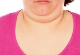 Exercícios faciais e dicas para reduzir a papada