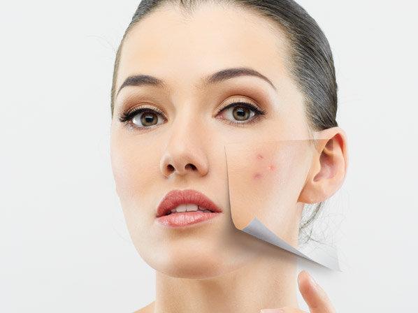 A melhor nata de pele de problema de cara