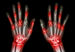 Remédios naturais para tratar a artrite reumatoide