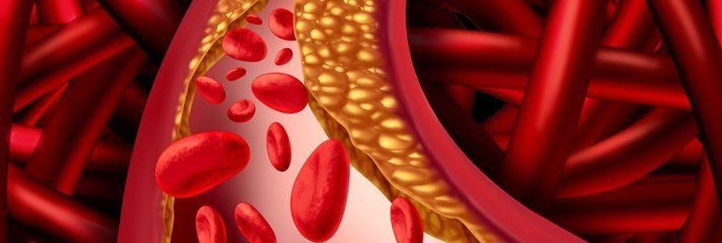 12 alimentos para desobstruir veias e artérias