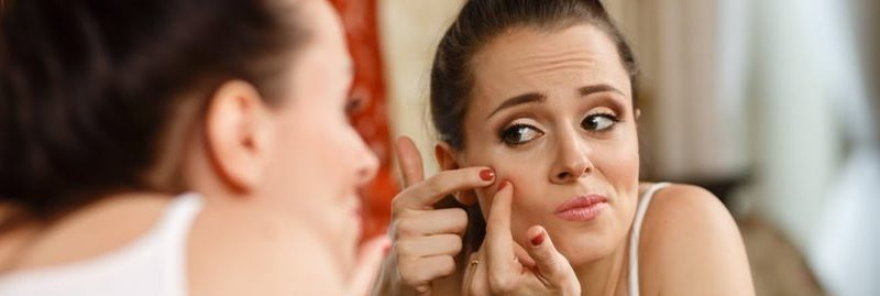 Alimentos que ajudam a prevenir a acne