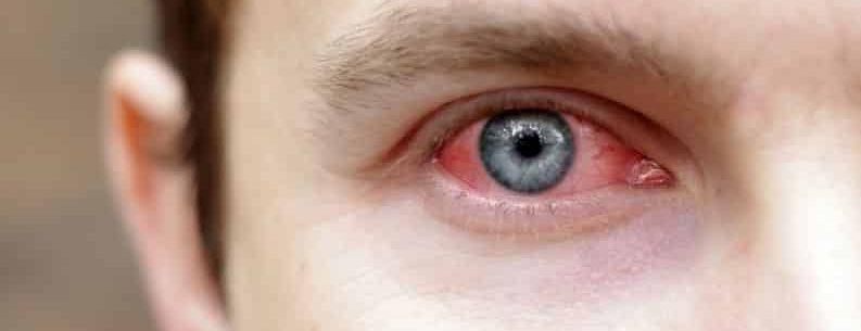 6 remédios caseiros eficazes para conjuntivite