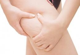 7 sucos para tratar e prevenir a celulite
