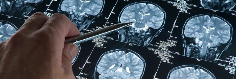 10 coisas que você deve saber sobre a doença de Alzheimer