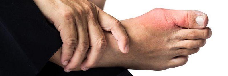 Dicas eficazes e remédios caseiros para tratar a gota