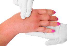Causas e tratamentos de mãos e pés inchados ao acordar