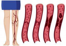 7 melhores remédios caseiros para trombose venosa profunda