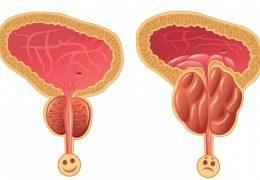 7 sintomas de câncer de próstata para ficar alerta