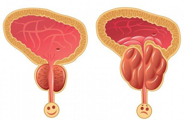 Resultado de imagen de sintomatologia cancer de prostata