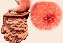 10 causas mais comuns para úlcera no estômago