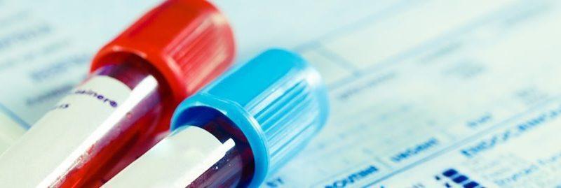 4 remédios caseiros para baixar a creatinina no sangue