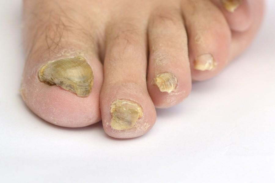 Tiras brancas em pregos de tratamento de pernas