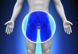 10 super alimentos para cuidar da saúde da próstata
